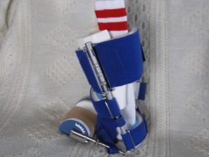 My Odd Sock's Dynasplint System