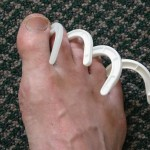 Hook Toe  (Is that nail fungus?)