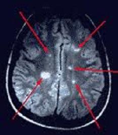 MRI brain lesions