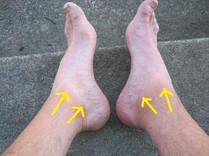 Hobbitt feet.